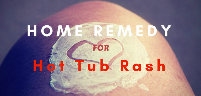 Hot Tub Rash Home Remedy
